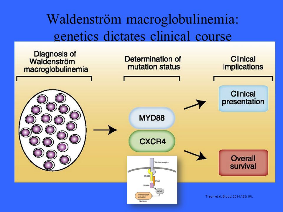 Waldenström macroglobulinemia: genetics dictates clinical course