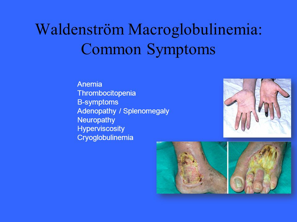 Waldenström Macroglobulinemia: Common Symptoms