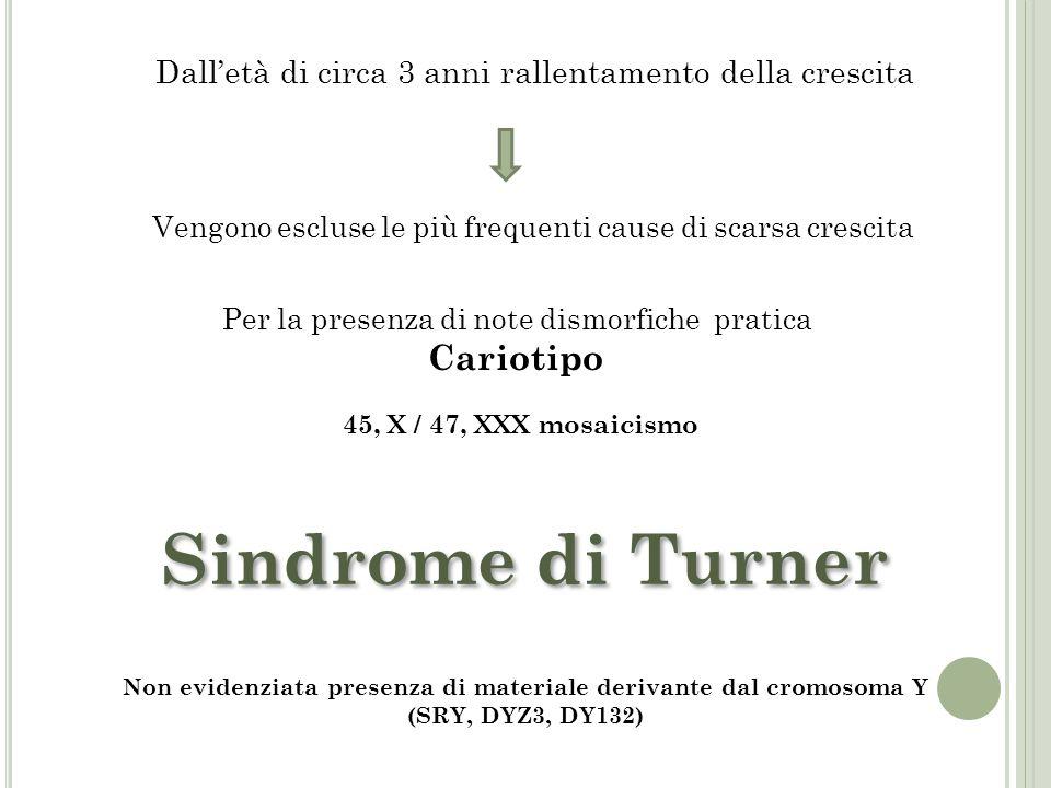 Sindrome di Turner Cariotipo