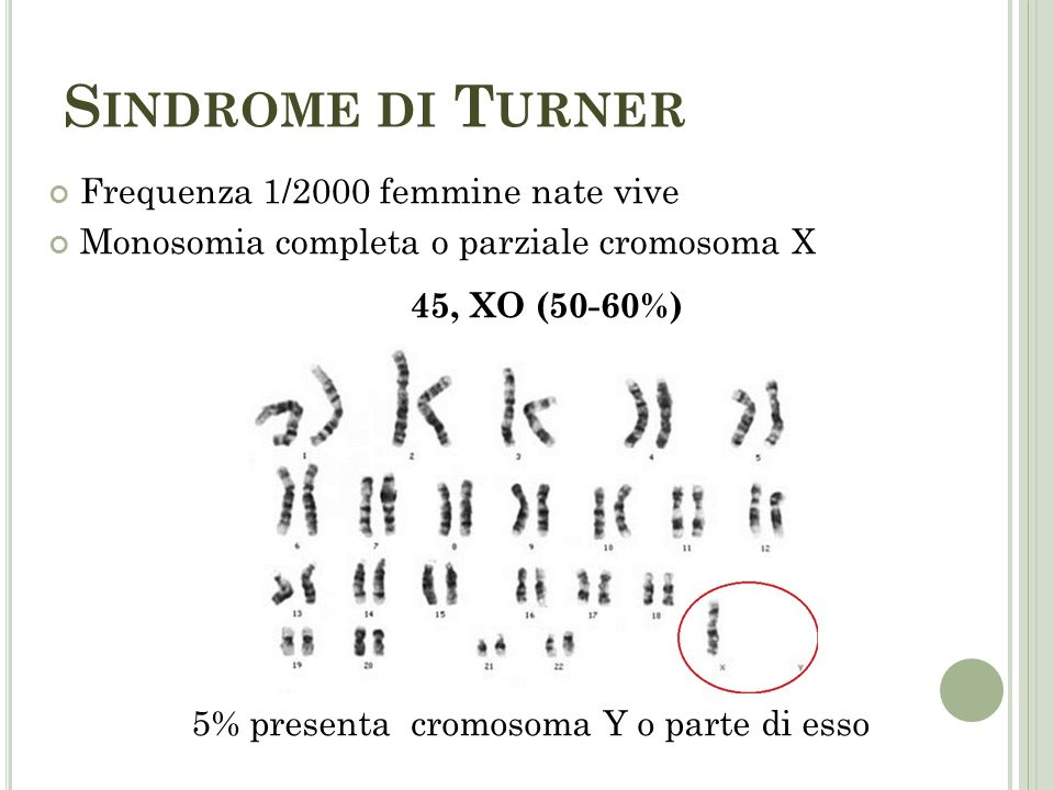 5% presenta cromosoma Y o parte di esso
