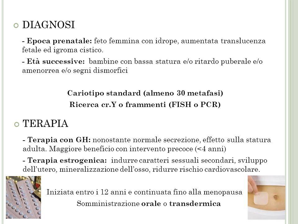 DIAGNOSI - Epoca prenatale: feto femmina con idrope, aumentata translucenza fetale ed igroma cistico.