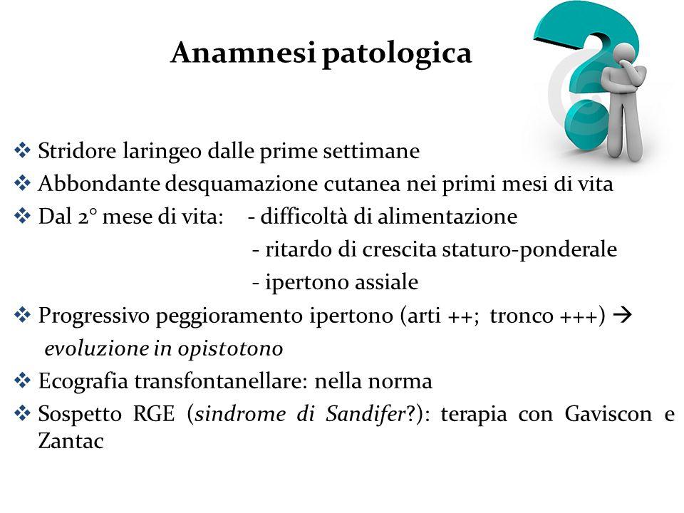 Anamnesi patologica Stridore laringeo dalle prime settimane
