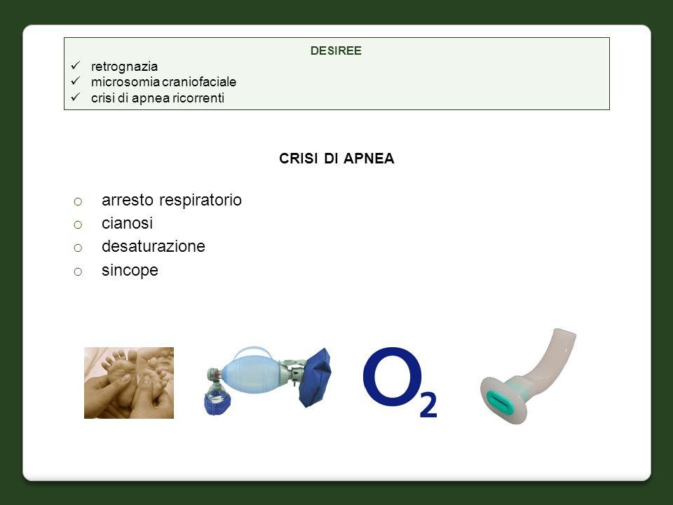 crisi di apnea arresto respiratorio cianosi desaturazione sincope
