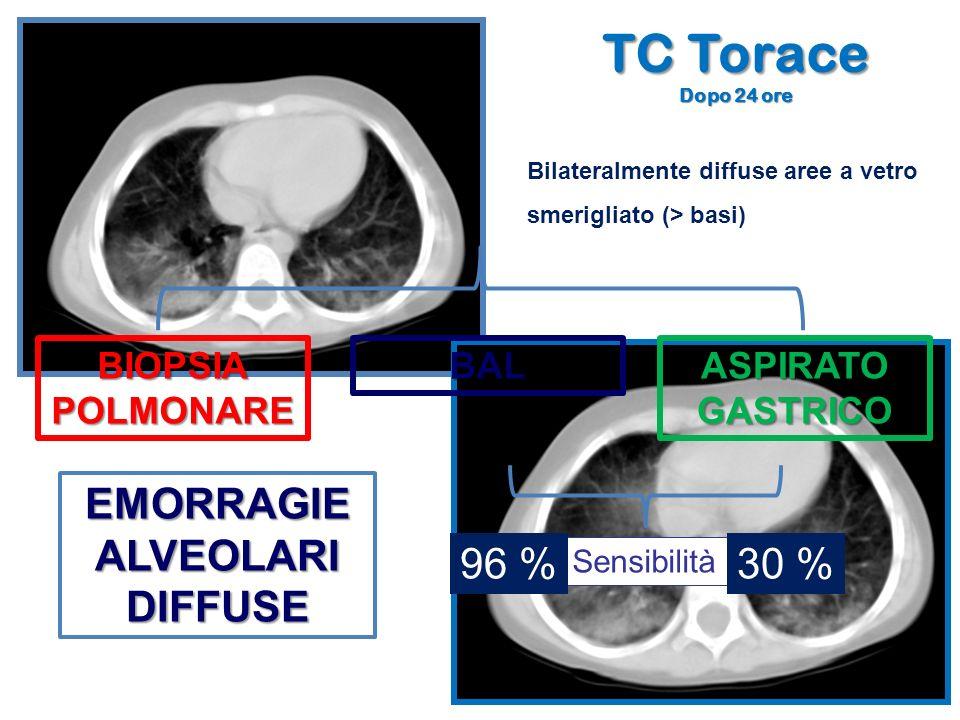 TC Torace EMORRAGIE ALVEOLARI DIFFUSE 96 % 30 % BIOPSIA POLMONARE BAL