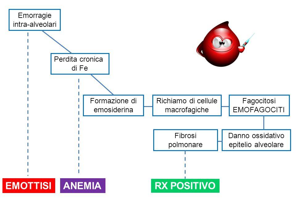 EMOTTISI ANEMIA RX POSITIVO Emorragie intra-alveolari Perdita cronica