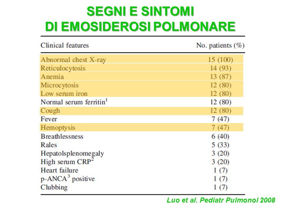 DI EMOSIDEROSI POLMONARE