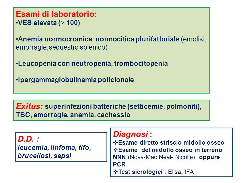 Esami di laboratorio: VES elevata (> 100) Anemia normocromica normocitica plurifattoriale (emolisi, emorragie,sequestro splenico)