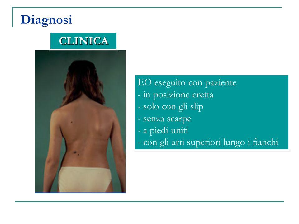 Diagnosi CLINICA EO eseguito con paziente in posizione eretta