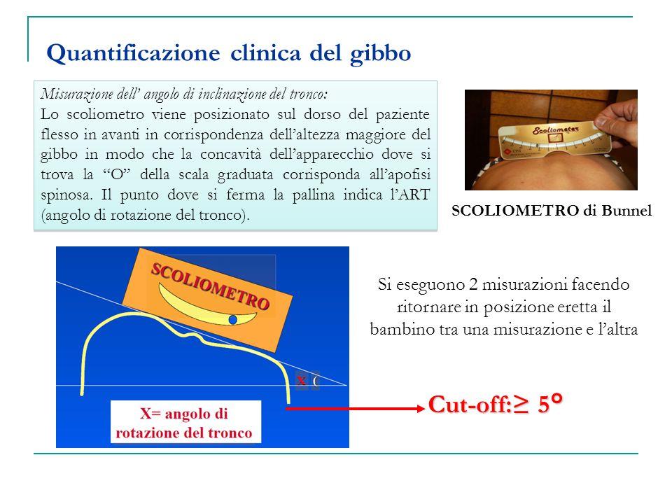 Quantificazione clinica del gibbo