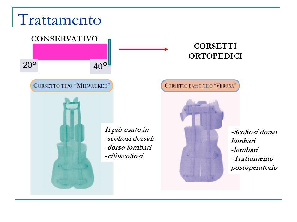 Trattamento CONSERVATIVO 40° 20° CORSETTI ORTOPEDICI Il più usato in