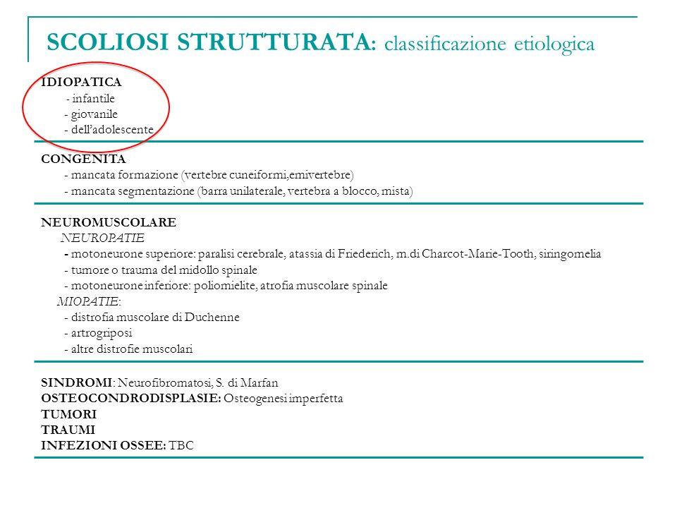 SCOLIOSI STRUTTURATA: classificazione etiologica