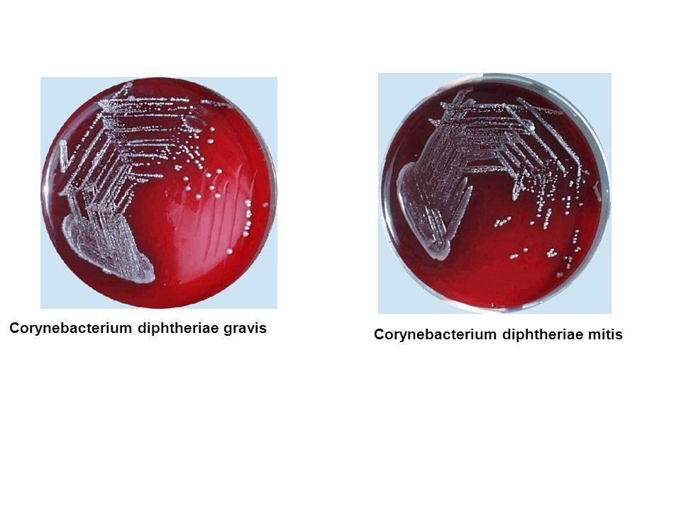 Corynebacterium diphtheriae gravis