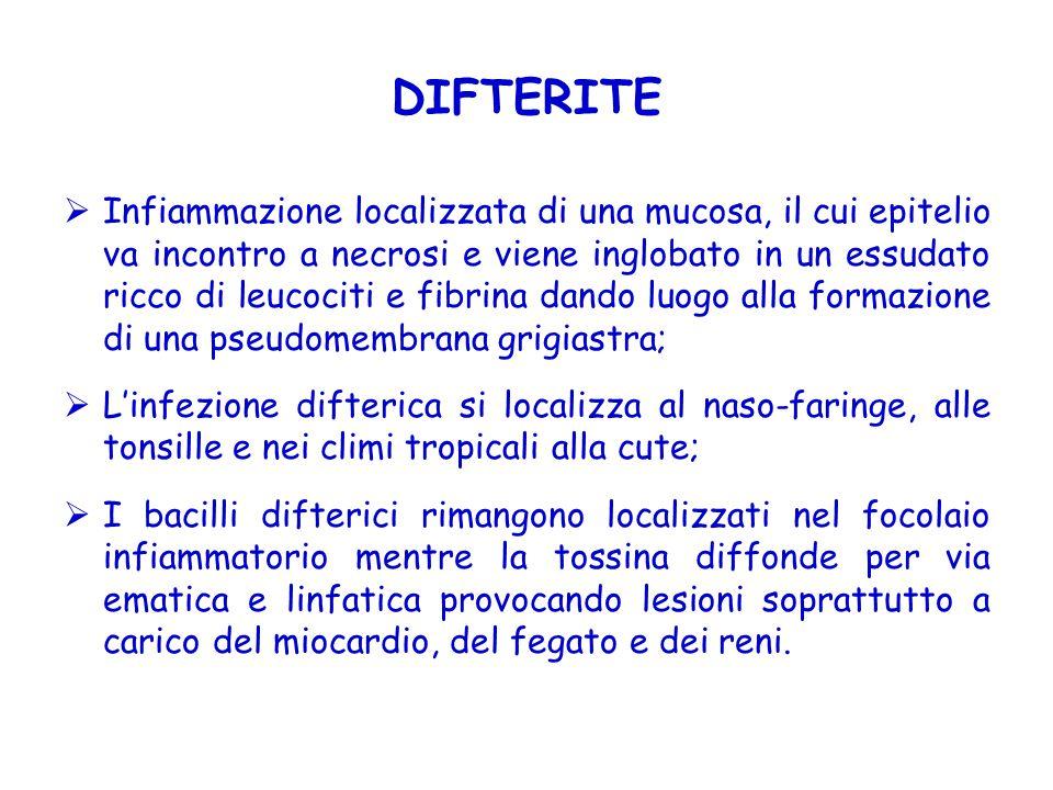 DIFTERITE