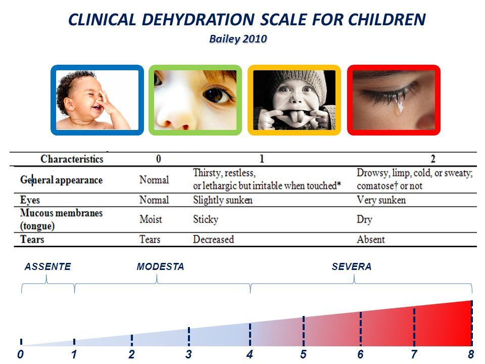 CLINICAL DEHYDRATION SCALE FOR CHILDREN