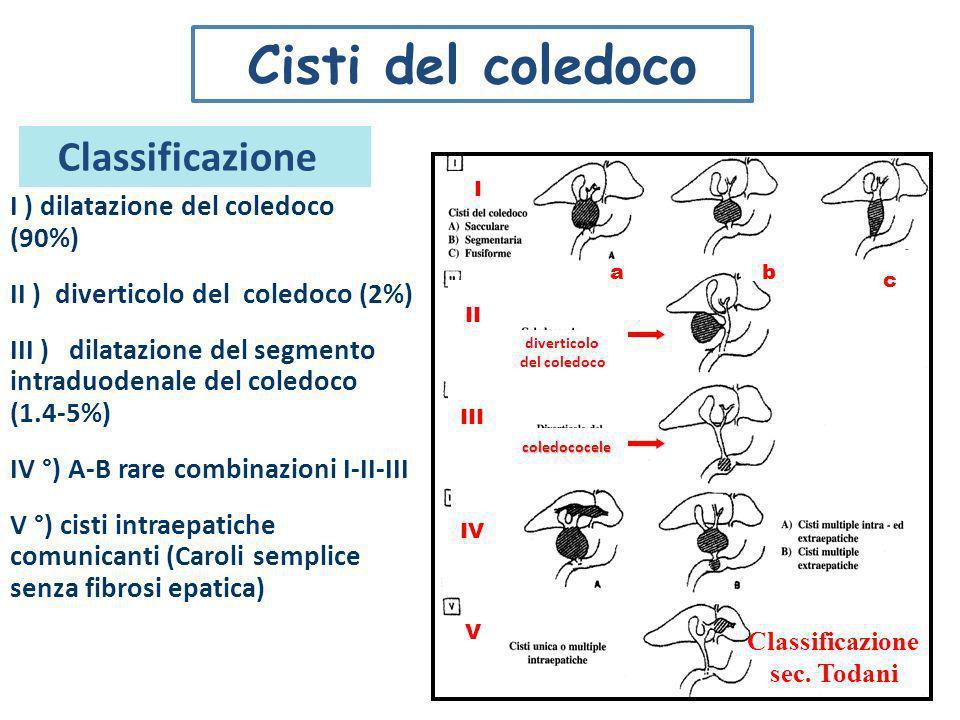 Cisti del coledoco Classificazione I ) dilatazione del coledoco (90%)