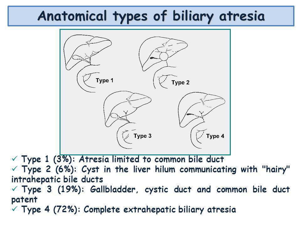 Anatomical types of biliary atresia