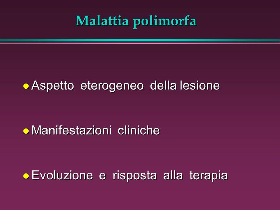Malattia polimorfa Aspetto eterogeneo della lesione