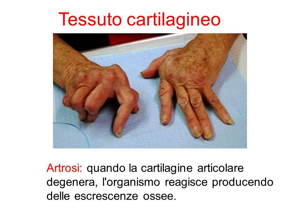 Tessuto cartilagineo Artrosi: quando la cartilagine articolare degenera, l organismo reagisce producendo delle escrescenze ossee.