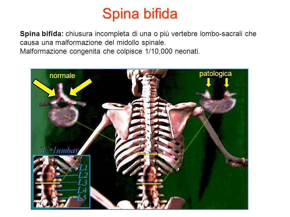 Spina bifidaSpina bifida: chiusura incompleta di una o più vertebre lombo-sacrali che causa una malformazione del midollo spinale.