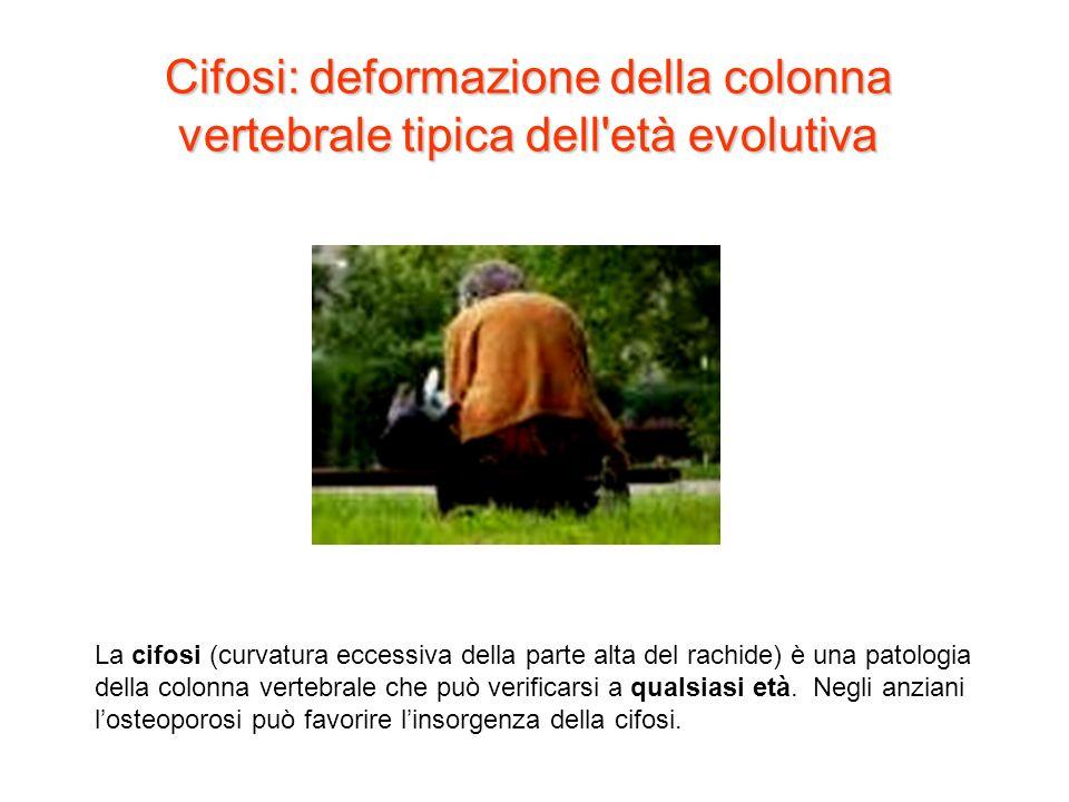 Cifosi: deformazione della colonna vertebrale tipica dell età evolutiva