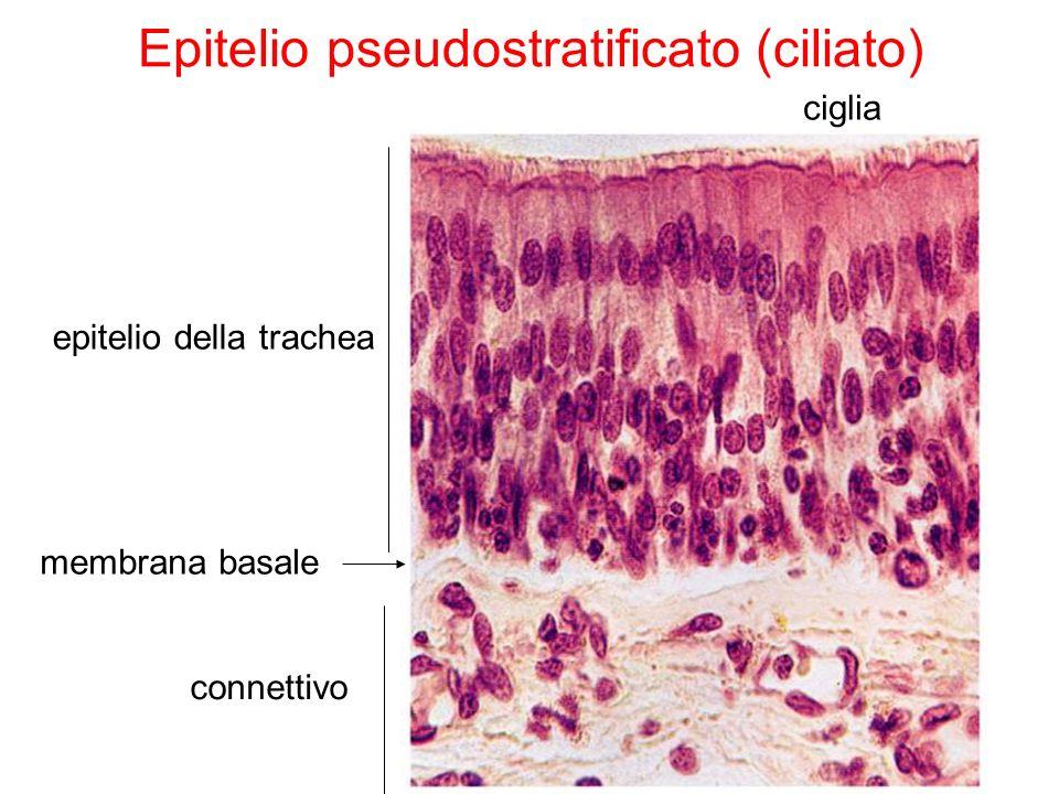 Epitelio pseudostratificato (ciliato)