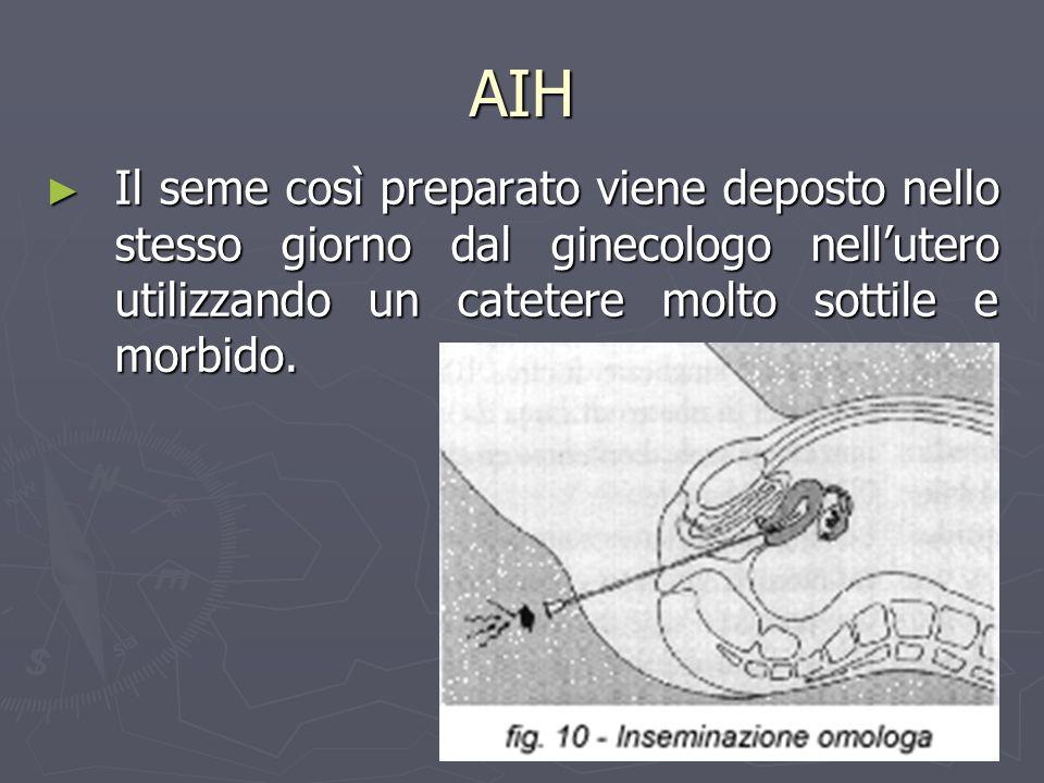 AIH Il seme così preparato viene deposto nello stesso giorno dal ginecologo nell'utero utilizzando un catetere molto sottile e morbido.