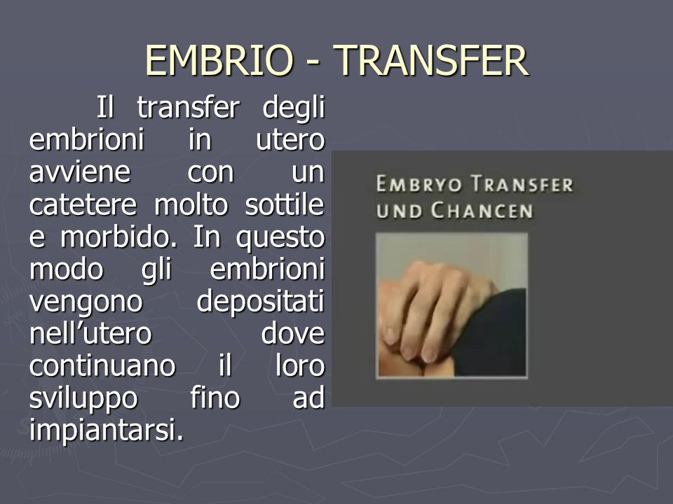 EMBRIO - TRANSFER