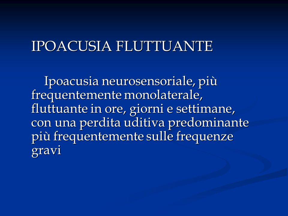IPOACUSIA FLUTTUANTE