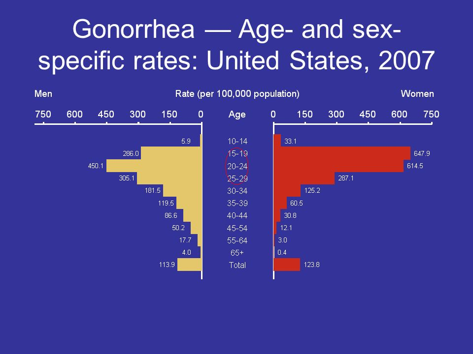 Gonorrhea — Age- and sex-specific rates: United States, 2007