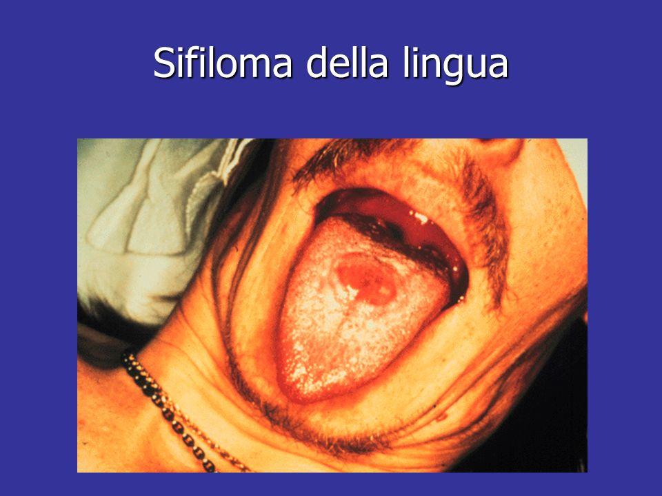 Sifiloma della lingua