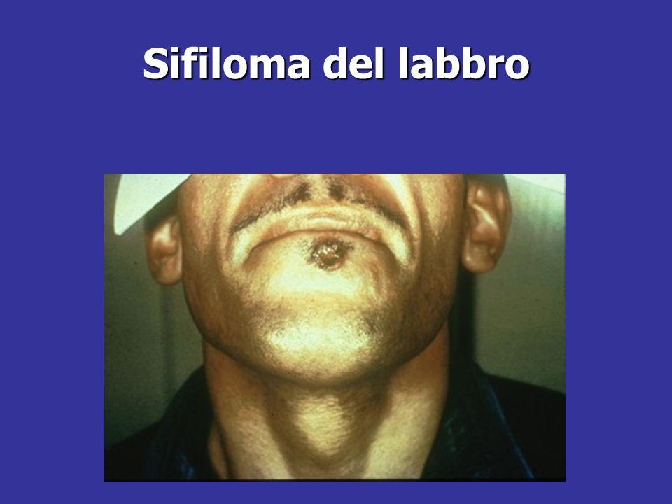 Sifiloma del labbro