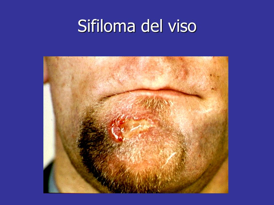 Sifiloma del viso Facial chancres may easily become secondarily infected, obscuring the underlying problem.