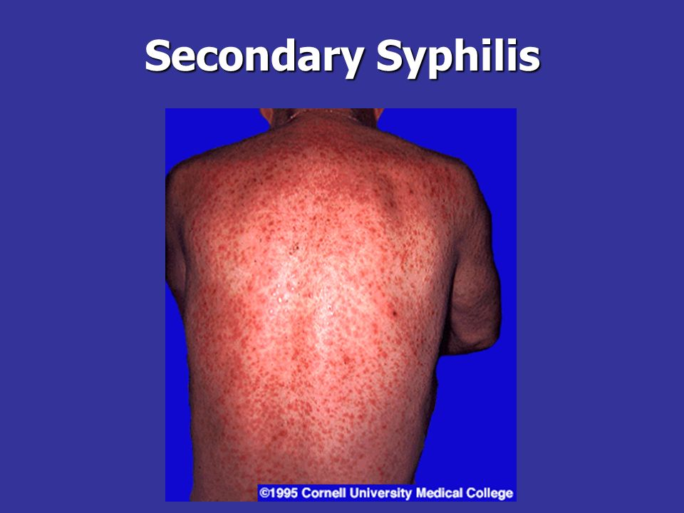 Secondary Syphilis