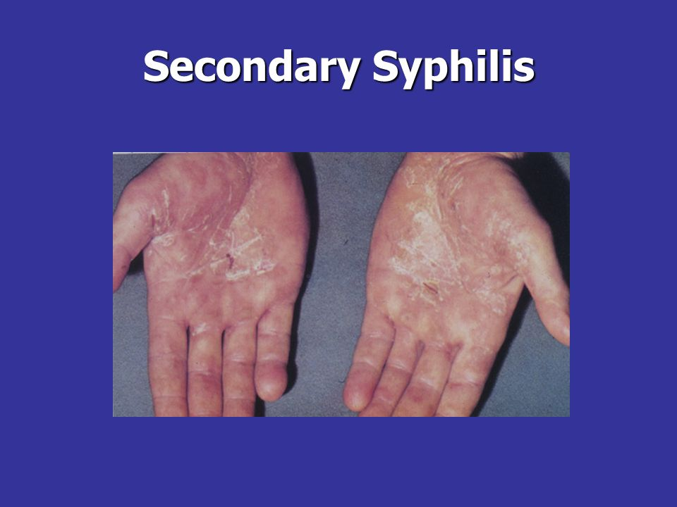 Secondary SyphilisThe rash of secondary syphilis may be psoriasiform, as here on the palms of the hands.