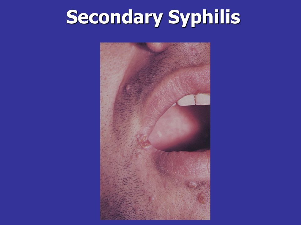Secondary SyphilisAn example of the papulopustular form of syphilis (from http://www.hc-sc.gc.ca/pphb-dgspsp/slm-maa/slides/syphilis/index.html).