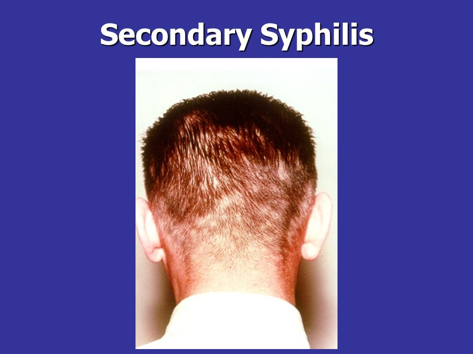 Secondary Syphilis Patchy alopecia is common in secondary syphilis.