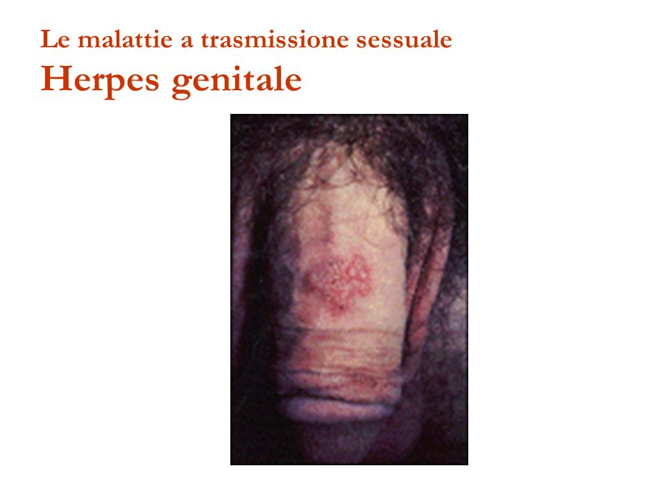 Le malattie a trasmissione sessuale Herpes genitale