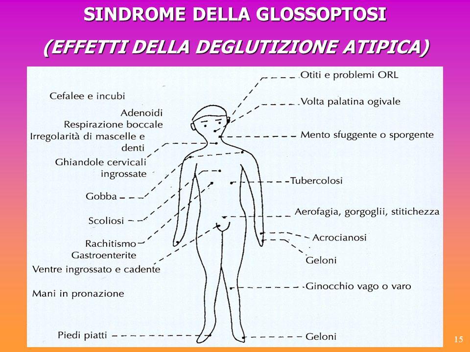 SINDROME DELLA GLOSSOPTOSI (EFFETTI DELLA DEGLUTIZIONE ATIPICA)