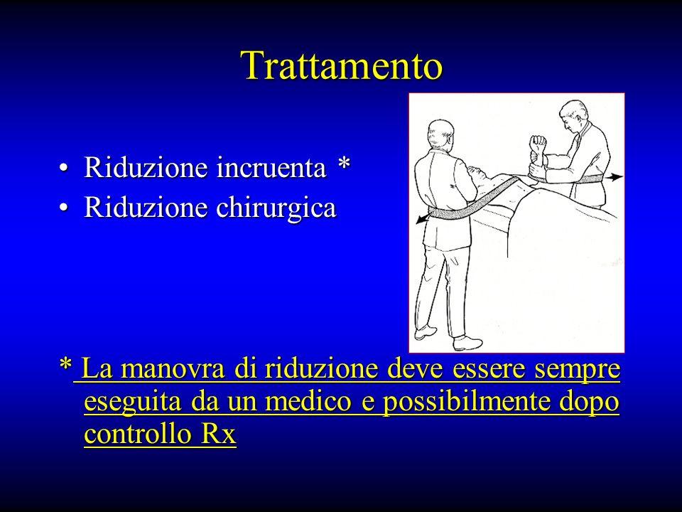 Trattamento Riduzione incruenta * Riduzione chirurgica