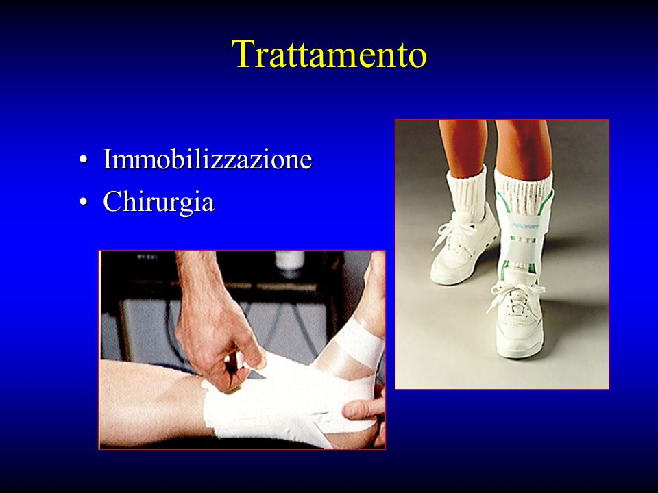 Trattamento Immobilizzazione Chirurgia