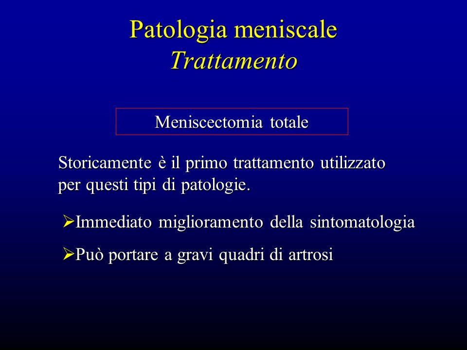 Patologia meniscale Trattamento