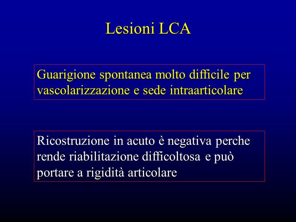 Lesioni LCA Guarigione spontanea molto difficile per vascolarizzazione e sede intraarticolare.
