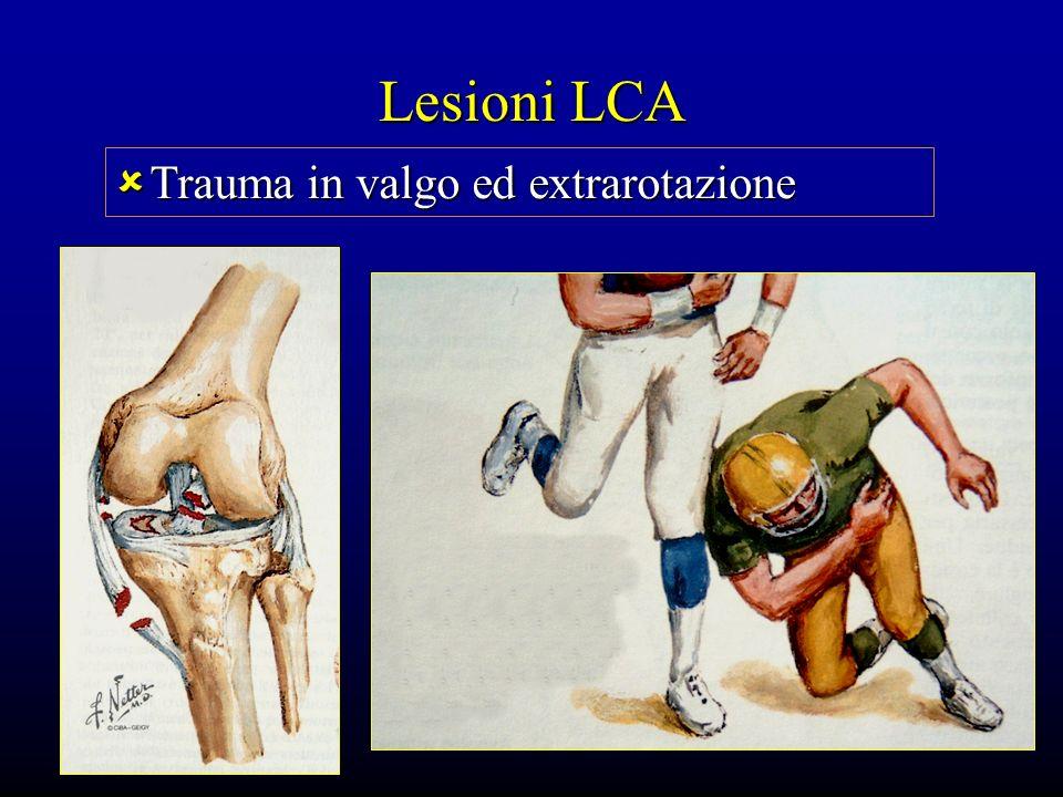Lesioni LCA Trauma in valgo ed extrarotazione