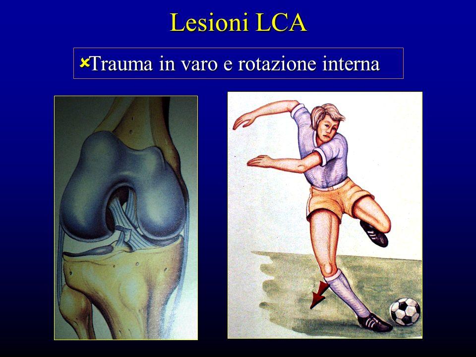 Lesioni LCA Trauma in varo e rotazione interna