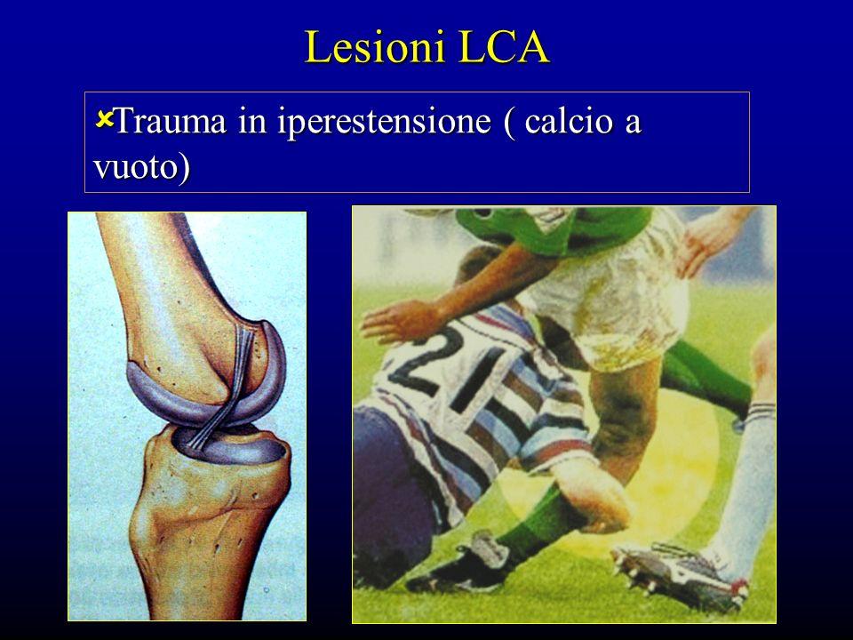 Lesioni LCA Trauma in iperestensione ( calcio a vuoto)
