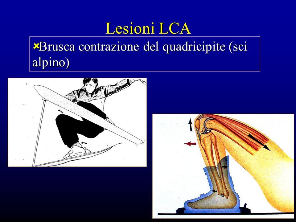 Lesioni LCA Brusca contrazione del quadricipite (sci alpino)