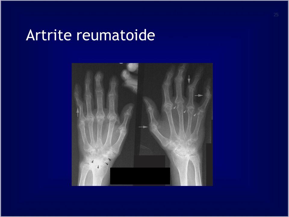Artrite reumatoide 25