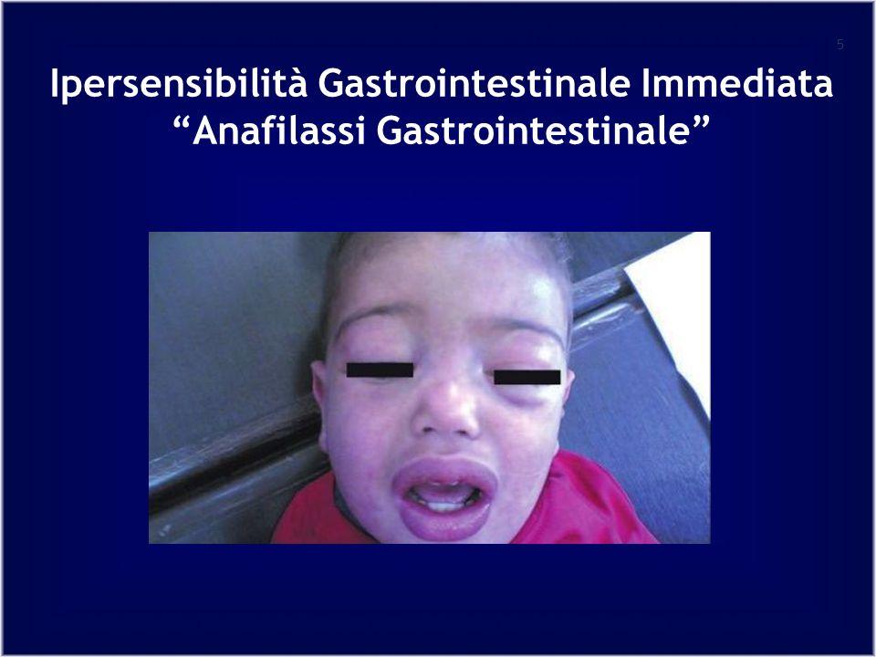 Ipersensibilità Gastrointestinale Immediata Anafilassi Gastrointestinale