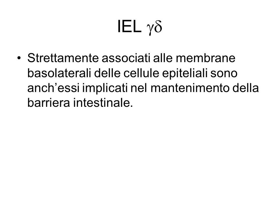 IEL gd