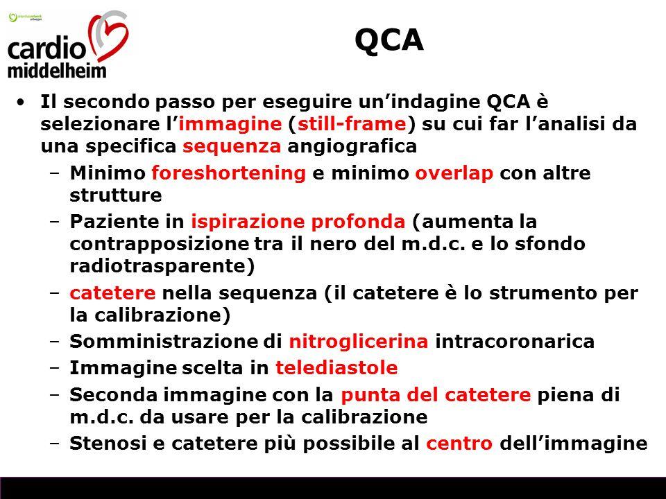 QCA Il secondo passo per eseguire un'indagine QCA è selezionare l'immagine (still-frame) su cui far l'analisi da una specifica sequenza angiografica.